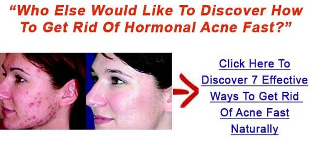 How To Get Rid Of Pimples On Your Head Amazing Hints To Treat Acne Fast How To Cure Severe Acne Natural Healing Methods